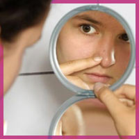 Як позбутися прищів на обличчі