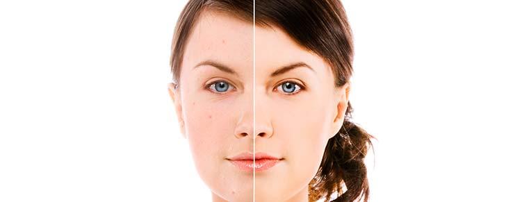 Як лікувати вугровий висип на обличчі