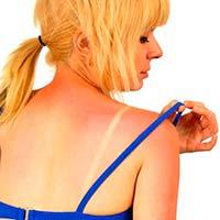 Як вилікувати сонячні опіки