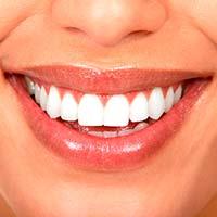 Видалення зубного нальоту