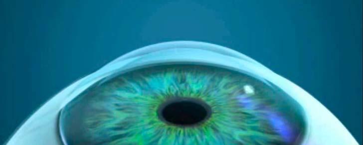 10 популярних міфів про лазерну корекцію зору