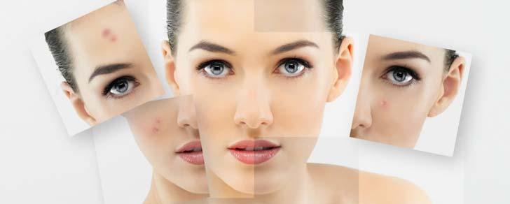 Омолодження обличчя - в якому віці варто звернутися до косметолога?