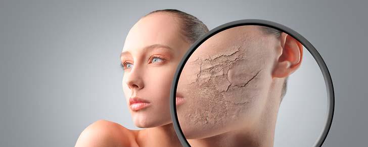 8 порад з догляду за сухою шкірою